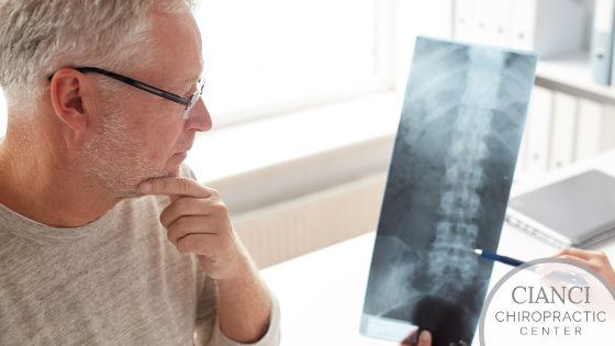 Spinal Decompression Therapy or Back Surgery, Which is the Right Option for You?
